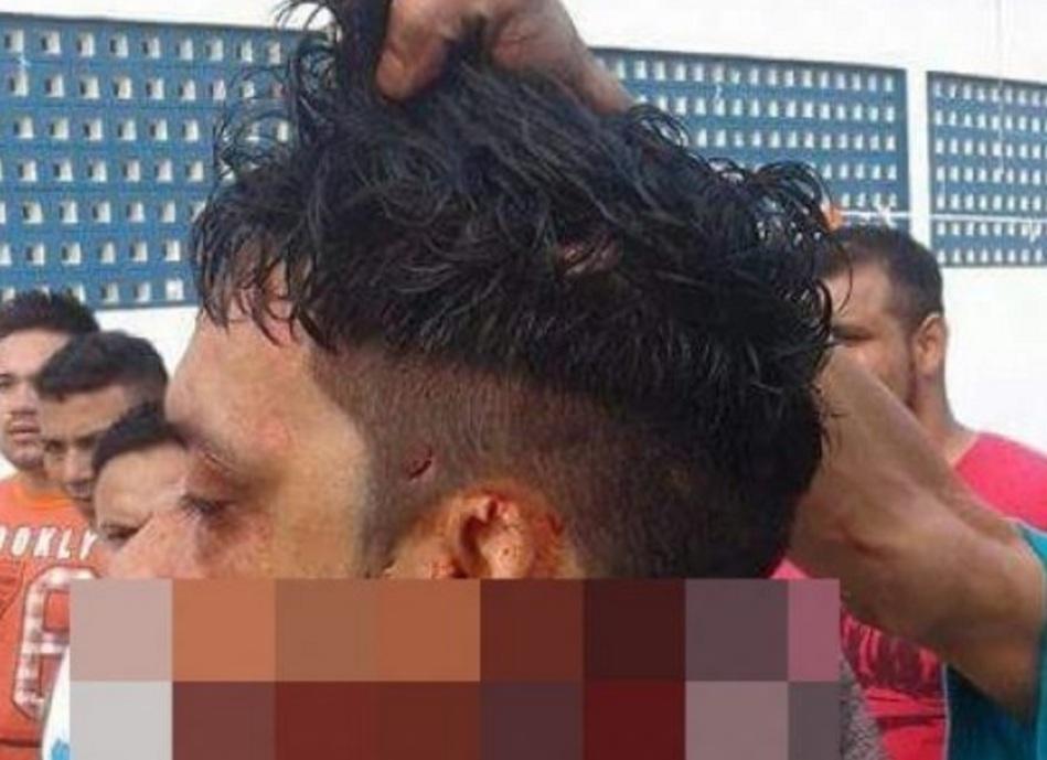 Preso tem sua cabeça decepada em presídio de Manaus